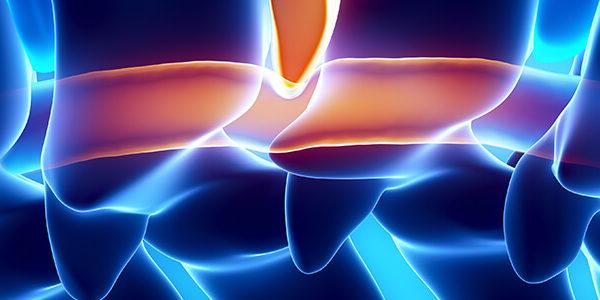 Disc bulge vs. Disc herniation